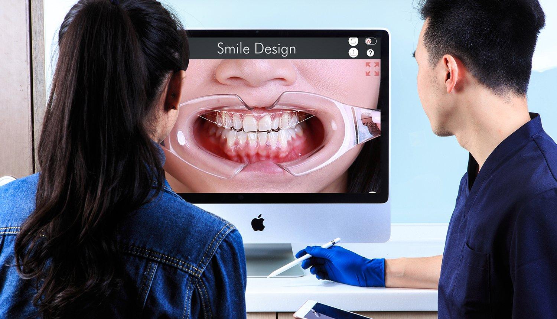 正顎手術 影像討論治療計畫 |Dr.Emma 蔡宜均醫師| 丰采美學牙醫診所