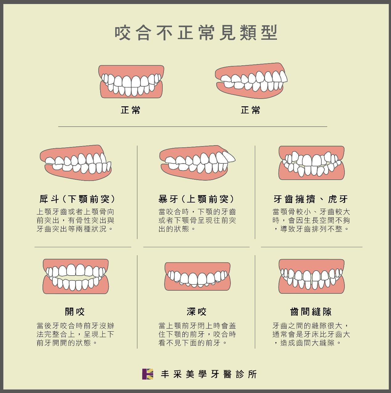 傳統矯正 咬合不正常見種類 丰采美學牙醫