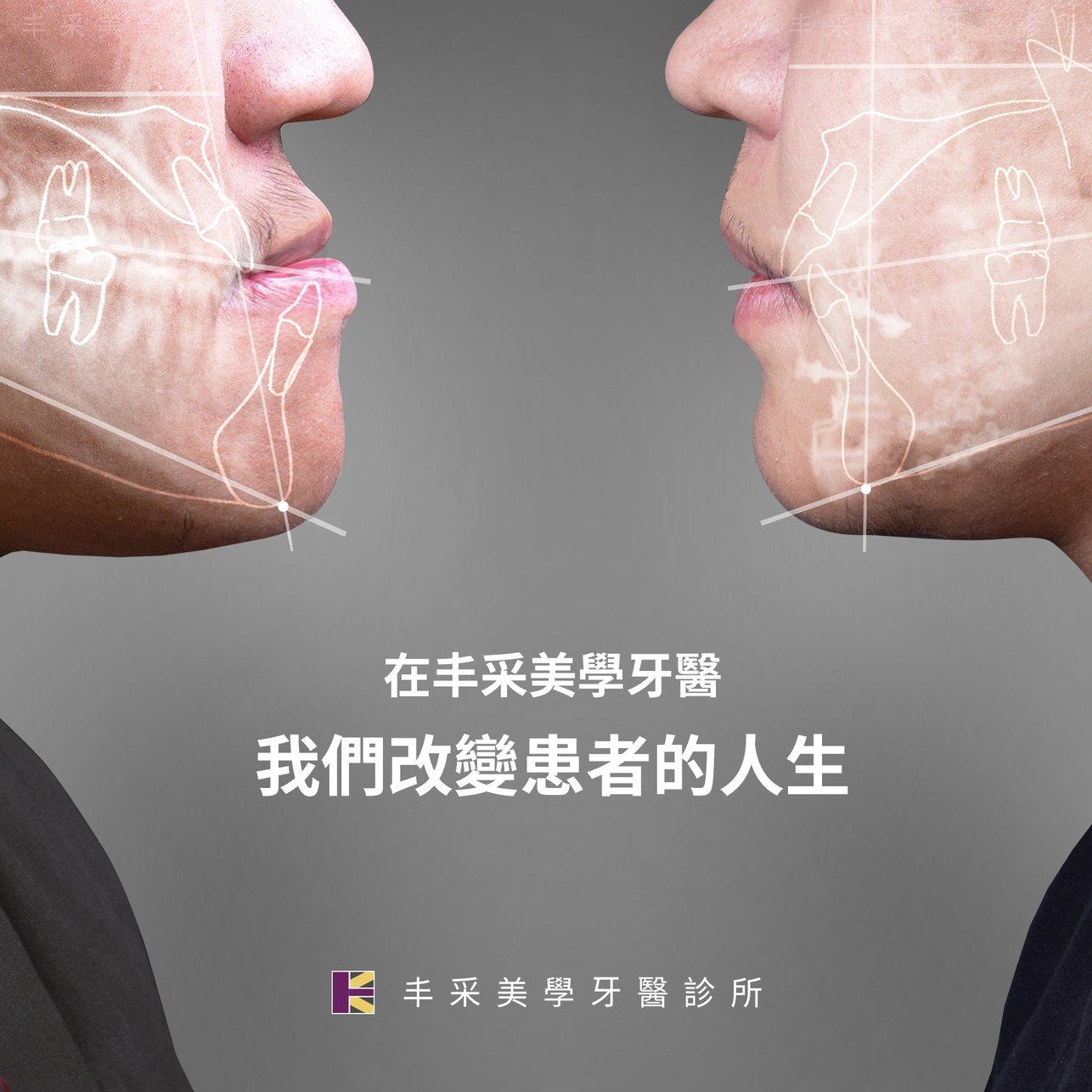 正顎-正方形0212-3