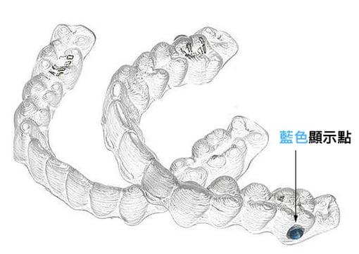 青少年隱適美透明牙套|Dr.EMMA蔡宜均醫師
