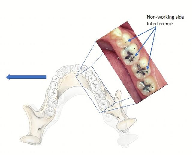 顳顎關節障礙 咬合干擾 | 丰采美學牙醫診所