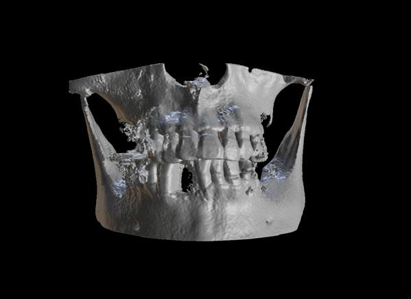 牙科電腦斷層掃描