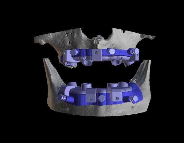 植牙手術導引板