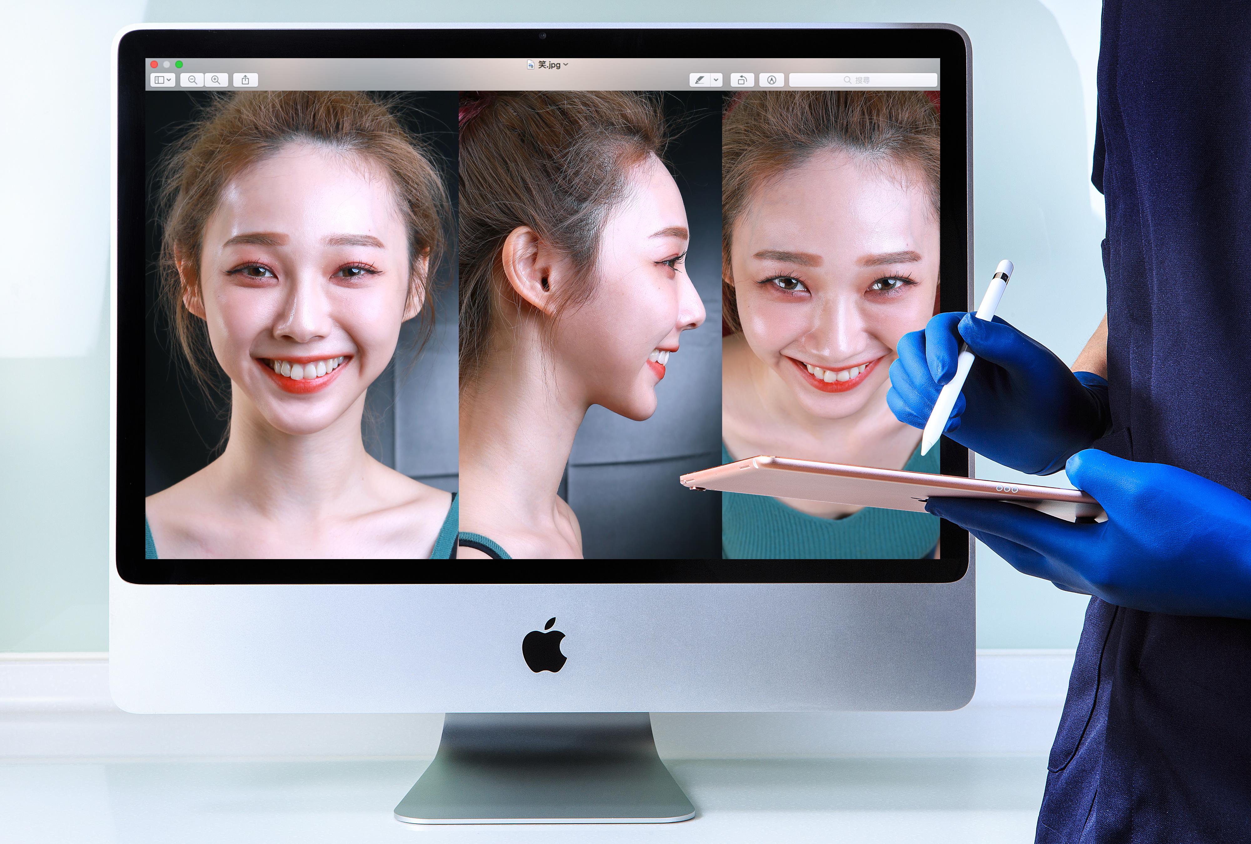 數位微笑設計 丰采美學牙醫