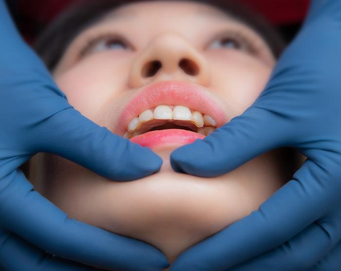 顳顎關節障礙檢測 | 丰采美學牙醫診所