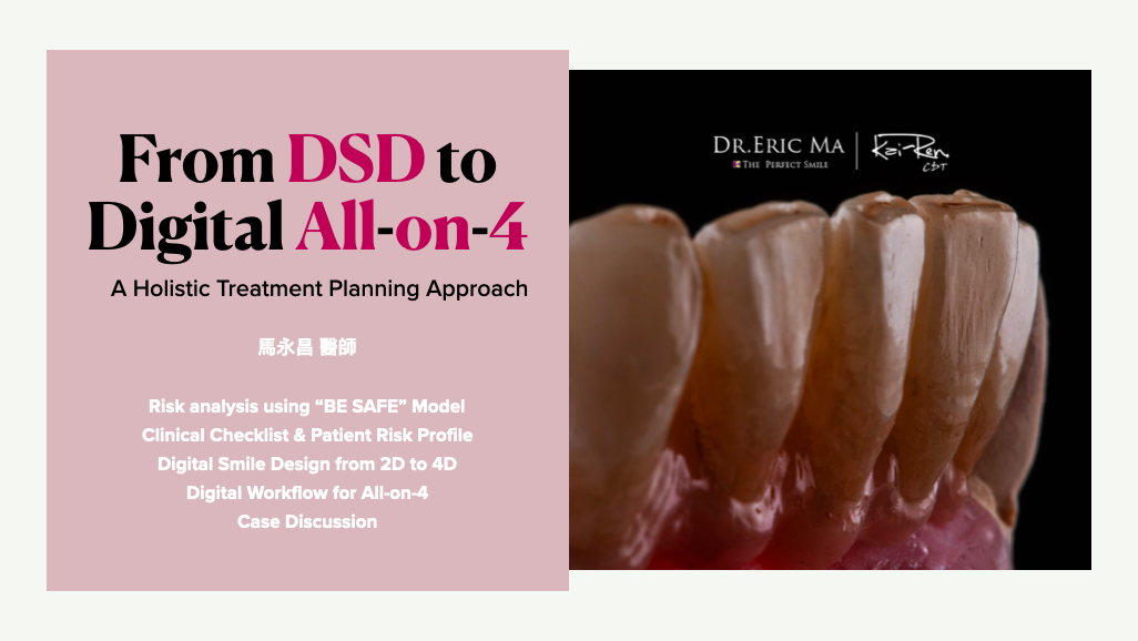 From DSD to Digital All-on-4