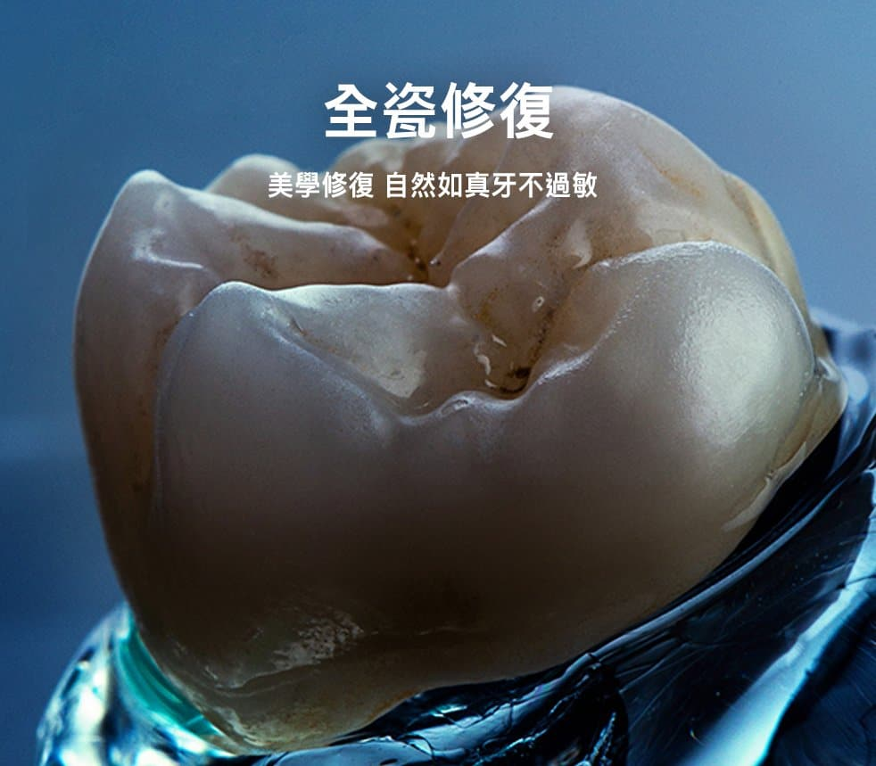 全瓷冠假牙貼片修復