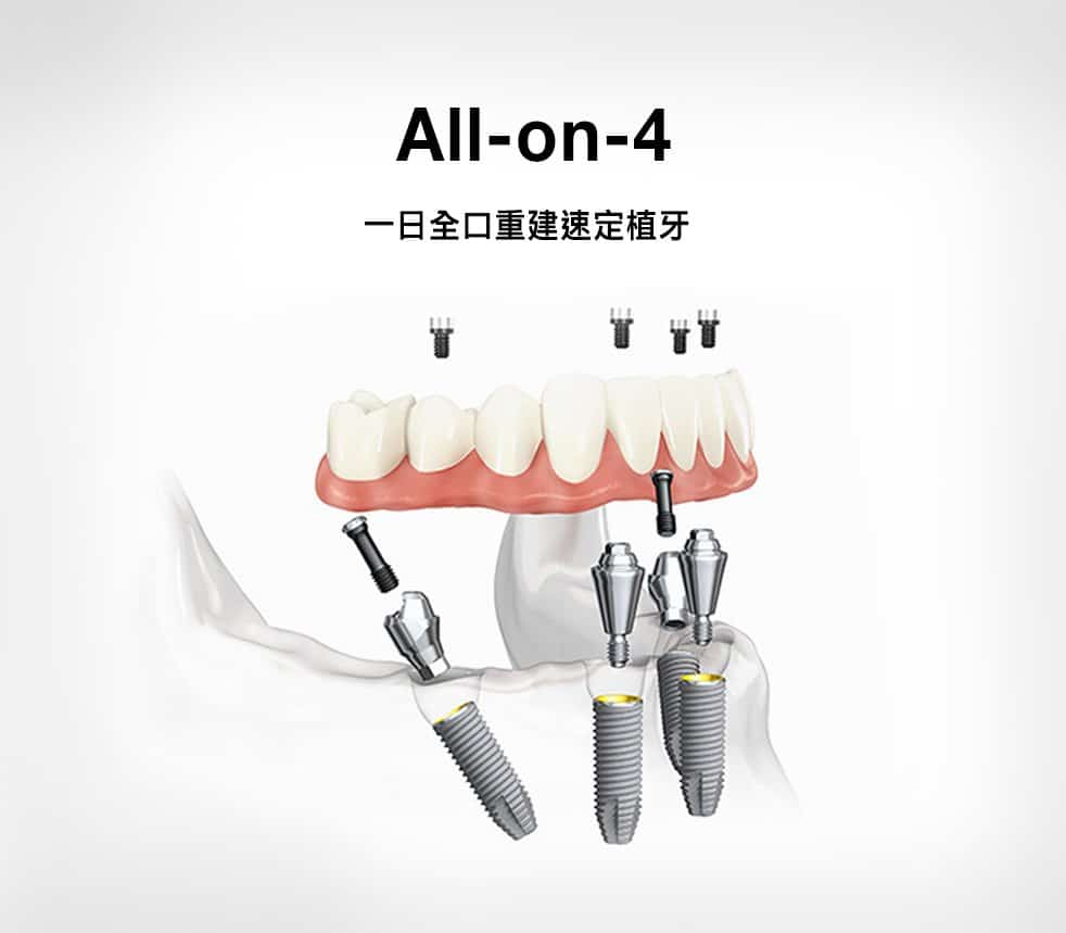 All-on-4全口重建速定植牙