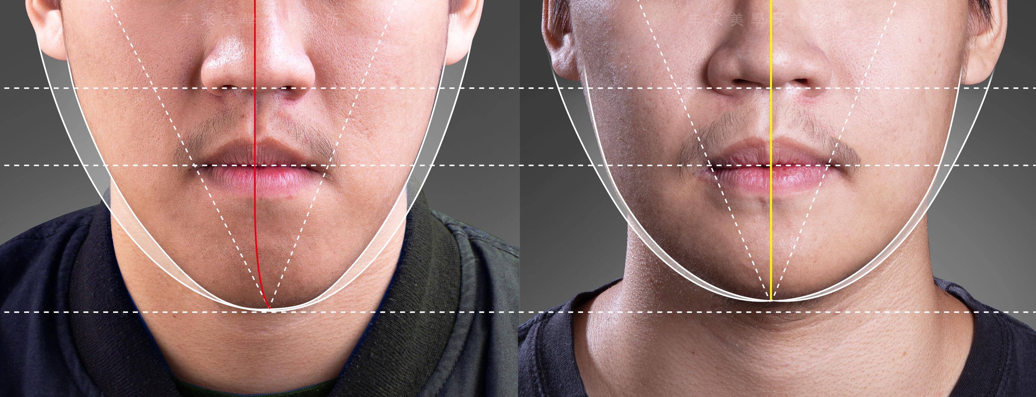 正顎手術 歪臉| 丰采美學牙醫診所