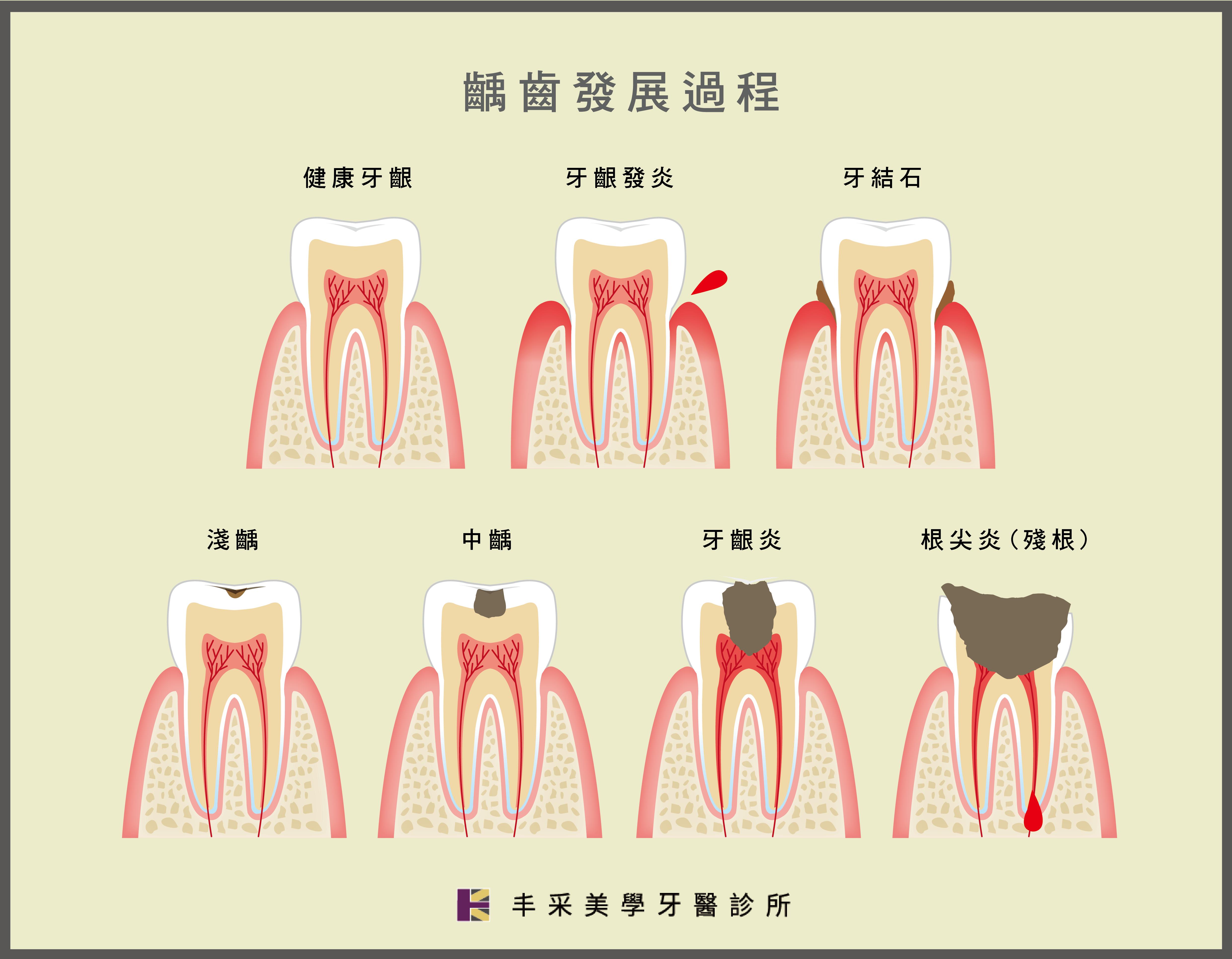 丰采美學牙醫-齲齒(蛀牙)發展過程示意圖