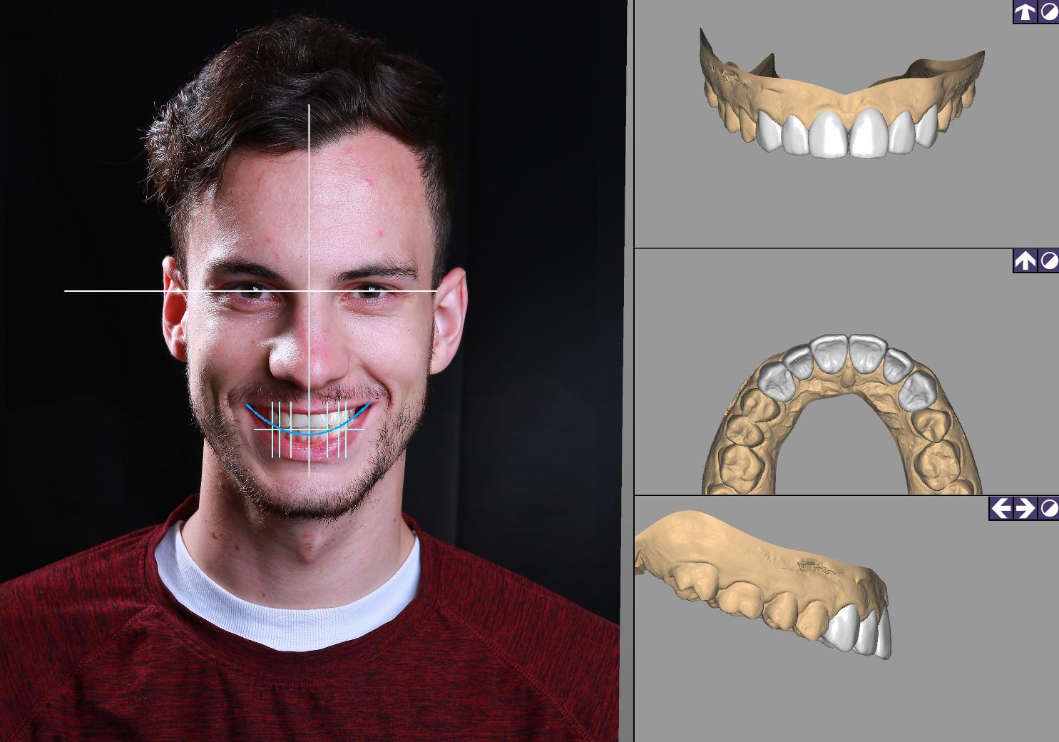 DSD數位微笑設計 數位模擬 丰采美學牙醫