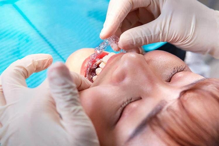 隱適美牙套可取下 | Dr.EMMA蔡宜均醫師