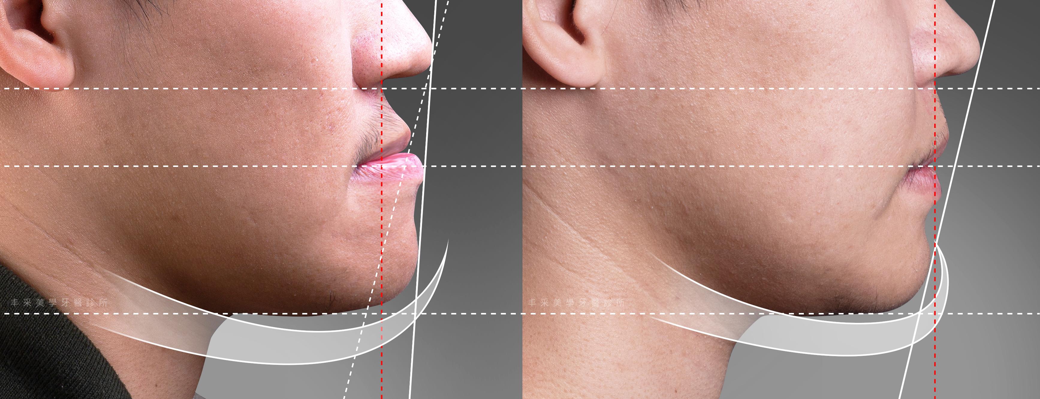 正顎手術 | 戽斗矯正案例 |Dr.Emma 蔡宜均醫師| 丰采美學牙醫診所