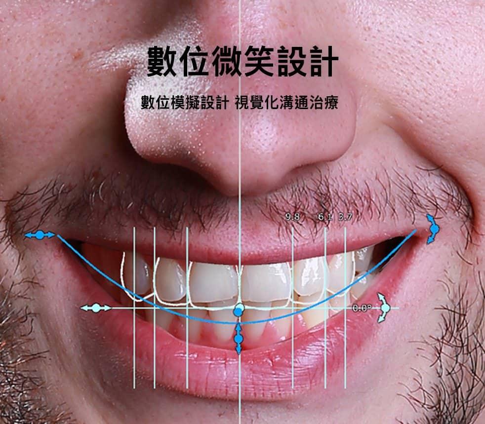 DSD數位微笑曲線