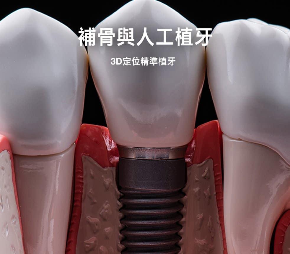 補骨與人工植牙