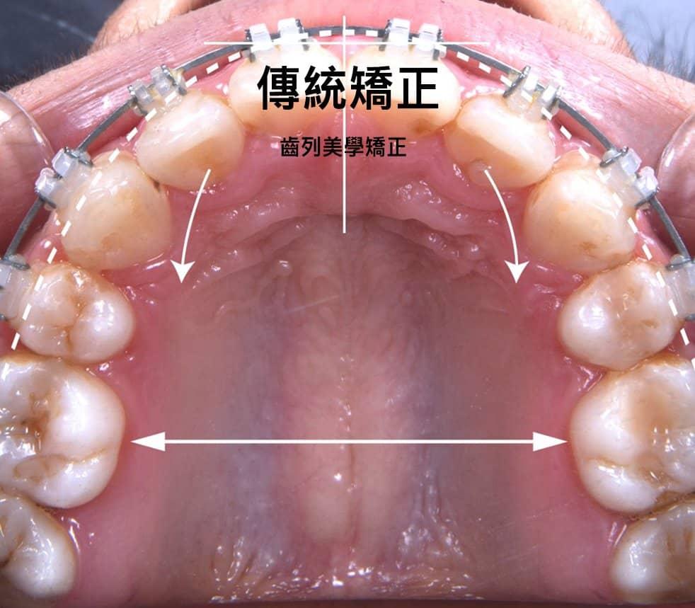 傳統齒顎矯正