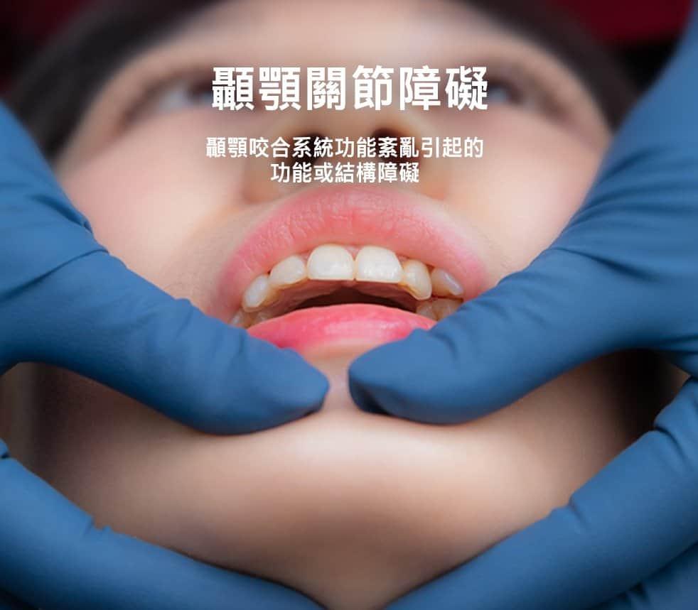 顳顎關節障礙症